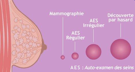 Cancer : auto examen des seins et frottis cervical