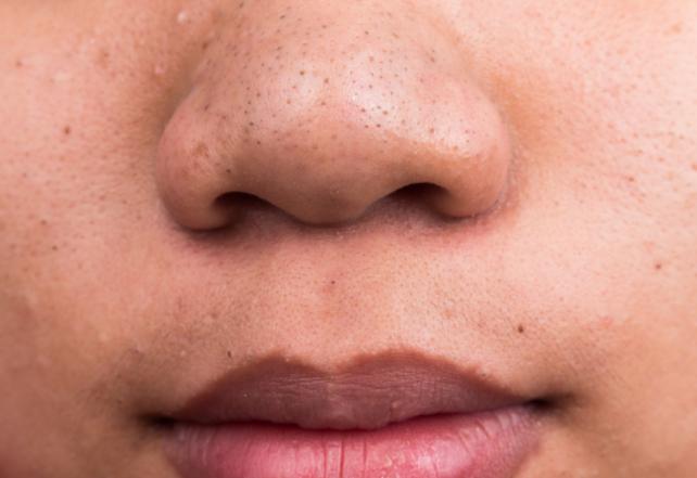 4 aliments qui abîment ton visage